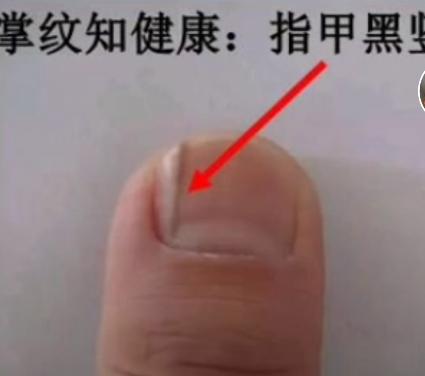 大拇指有黑色竖纹图片