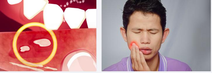 治口腔溃疡六个小偏方